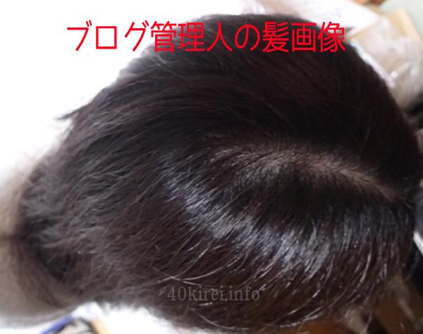 40代からの髪の悩みと薄毛治療効果写真