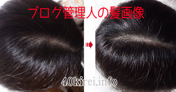 すこやか地肌の頭皮薄毛改善効果写真