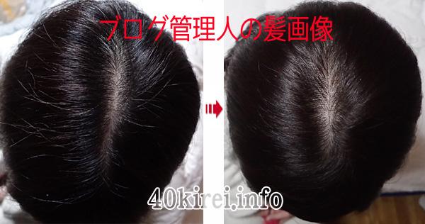 ラサーナ白髪染めヘアカラートリートメントの効果写真