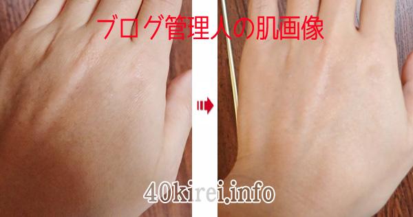 ビーグレンのシワ消し化粧品の効果写真
